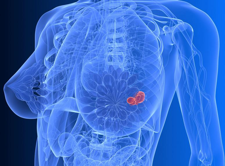 Rak piersi – pytania i odpowiedzi – dr n. med. Marcin Mika